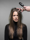 Woman looking annoyed because of scalp acne