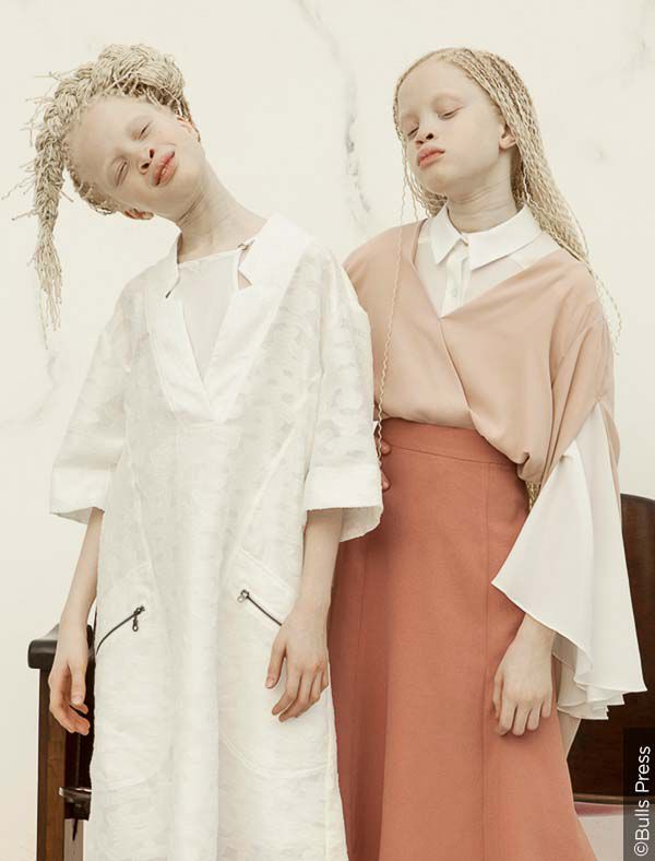 Albínská dvojčata Lara a Mara Bawar