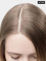 Scalp Clinix Blonde After