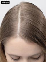 Scalp Clinix Blonde Before