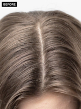 Scalp Clinix Before Brown