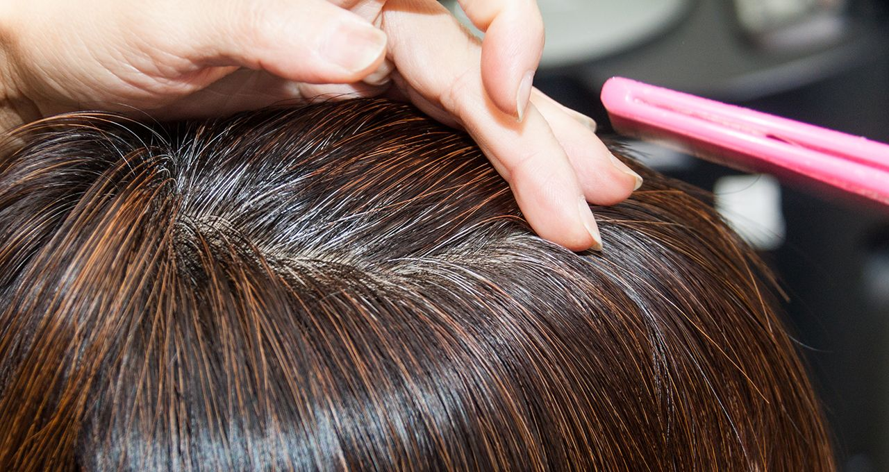 Parting the hair to see the scalp