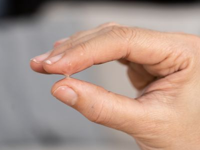 How to remove epoxy from skin in a flash